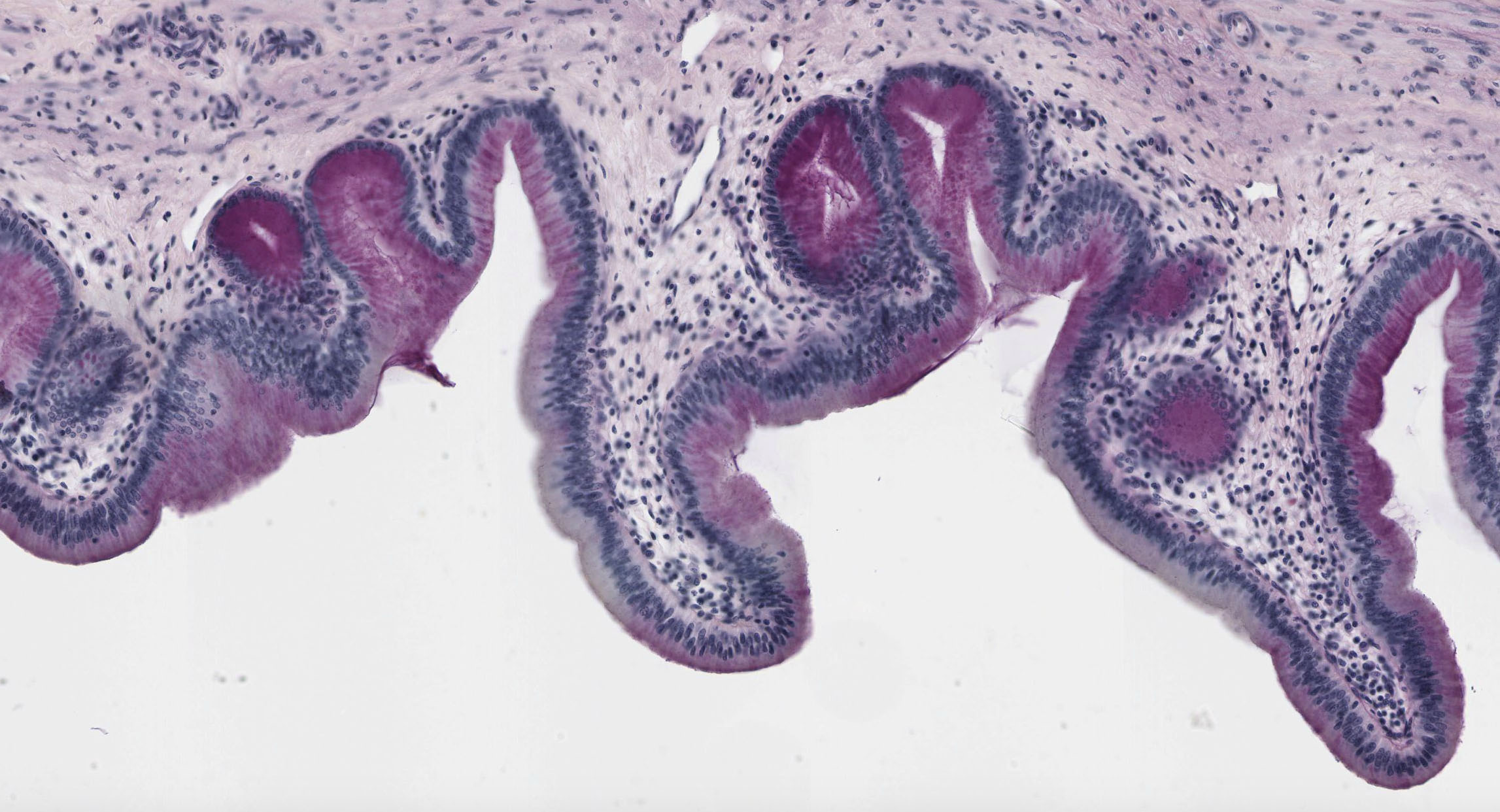 liver tissue